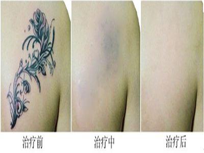 长沙微恩整形美容医院洗纹身多少钱 可以洗得干净吗