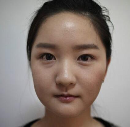 韩国大学生整容瘦脸全过程 从而改变她的人生