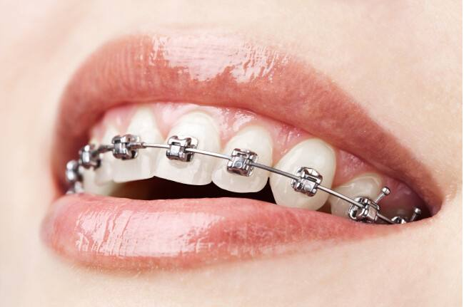 沈阳市口腔医院医疗整形科矫正牙齿多少钱
