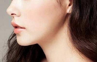 合肥华美整形医院下颌角整形要多少钱 多久才能恢复
