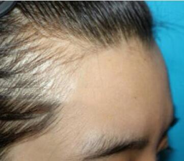 额头毛发种植哪家好 福州海峡植发医院种植发际线好吗