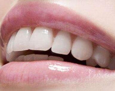 成都博爱医院口腔科在哪 矫正牙齿的方法有哪些