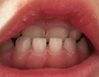 轻微龅牙有必要整吗 上海恒基口腔整形科能龅牙矫正吗