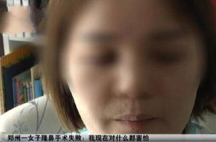 小霞做了双眼皮加内软骨鼻综合手术 脸肿之外一直流着脓