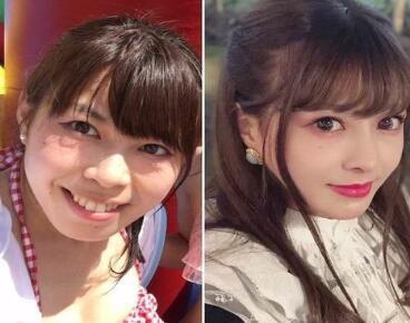 日本女子700万日元整容 脱胎换骨的变化