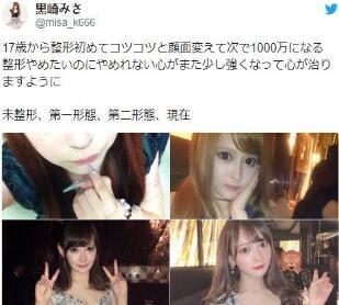 24岁陪酒女郎黑崎misa整容 秒杀韩国整形技术