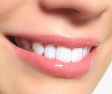 西安百思美口腔整形医院牙齿种植的过程是什么
