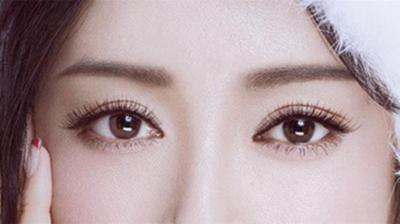 东莞美立方整形医院做全切双眼皮多少钱 多久能消肿