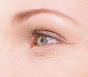 眼角皱纹如何去除 德州友谊整形医院激光去眼角纹效果