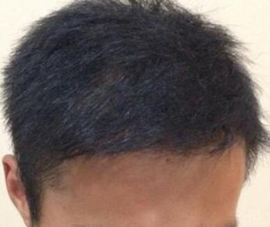 头顶植发哪家好 重庆雍禾做头顶加密多少钱