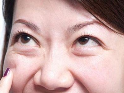 邯郸凯润婷整形医院正规吗 做去眼袋手术要多少钱