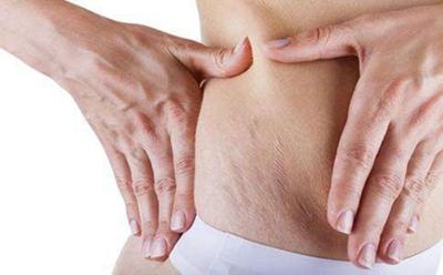 """杭州西美整形腰部吸脂多少钱 不费力就能变成小""""腰""""精"""