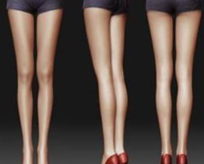 武汉协和医院整形科射频瘦小腿效果 适宜人群
