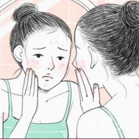 胶州第三人民医院皮肤科点阵激光祛痘 脸上光光滑滑的真好