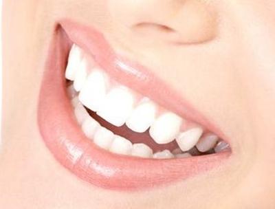 烤瓷牙价格表 上海美联臣整形医院口腔科做烤瓷牙多少钱