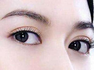 安庆维多利亚整形割双眼皮多少钱 手术价格因人而异