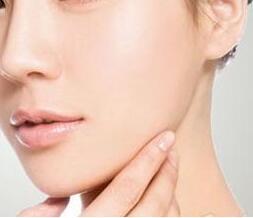 长春医美整形医院整容案例 下颌角整形效果