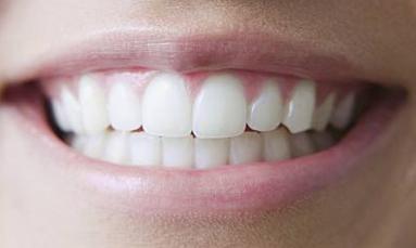 西安莲湖圣贝口腔整形医院好不好 种植牙的优点有哪些