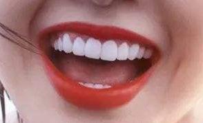 武汉达美口腔整形医院正规吗 牙齿修复效果主要体现在哪几点