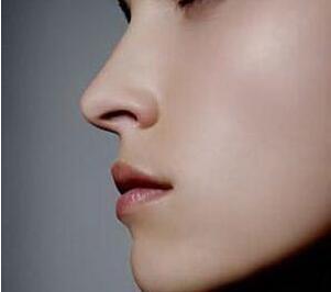 大庆东湖医院整形科自体隆鼻 安全隆鼻不留疤