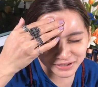 泰國女子Nong Guang額頭填充失敗 看完你還敢整容嗎