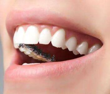 西安牙齿整形医院排行榜 地包天矫正价格