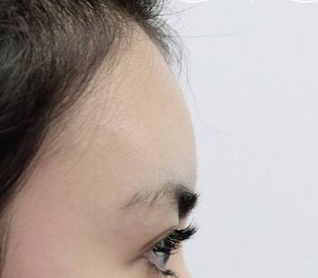 金华康美整形医院做脸部整形怎么样 假体丰额头多久见效