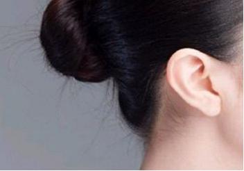 池州立新整形外科医院招风耳矫正效果怎样  有哪些副作用