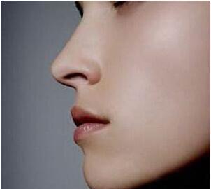 襄阳维多利亚假体隆鼻整形价格 术后多久能恢复