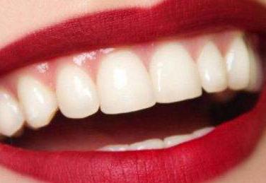 成都锦江极光口腔整形医院好吗 种植牙的过程是怎样的