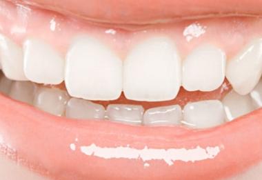 武汉爱齿尔口腔整形医院口碑如何 烤瓷牙一般能用多长时间
