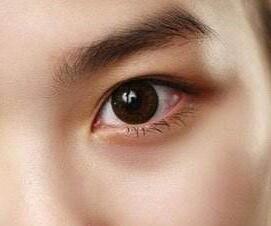 南昌天妃整形医院做眼部整形手术好吗 眼睑下垂如何矫正