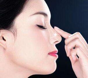 佛山假体隆鼻失败修复哪家好 价格是多少