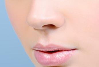亳州康美医疗整形医院排名如何 做鼻翼缩小后怎么护理