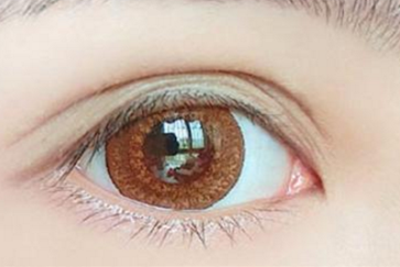 荆州天合美邦整形美容医院口碑如何 激光去黑眼圈的效果很好吗