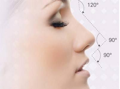福州曙光国际整形医院隆鼻整形贵吗 假体隆鼻的优势