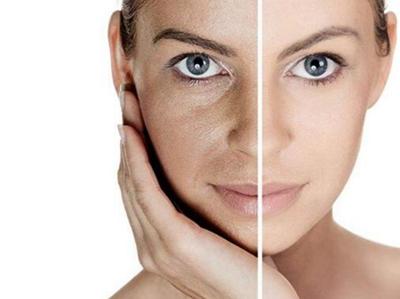合肥维纳斯整形彩光嫩肤多少钱 彩光嫩肤适应人群