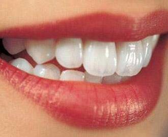 武汉爱齿尔口腔整形医院整牙对比照 地包天矫正价格