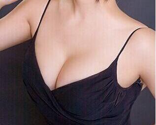 隆胸后图片 潍坊华美整形医院做假体丰胸多久能恢复