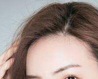 沈阳科发源做发际线植发多少钱 美丽只在一线间