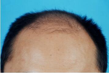 武汉武总植发医院靠谱吗  头发加密有副作用吗