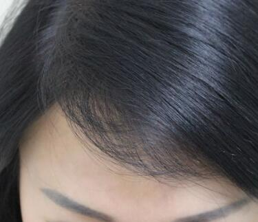 北京丽都种植发际线怎么样 植发的副作用有哪些
