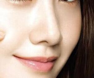 鼻子假体后遗症有哪些 焦作五官医院整形科做假体隆鼻好吗