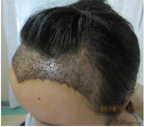 武汉美都久生生植发医院头发种植的效果好不好