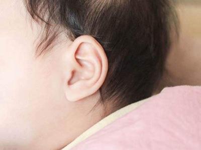 小耳畸形矫正几岁做 济南耳整形哪家医院好