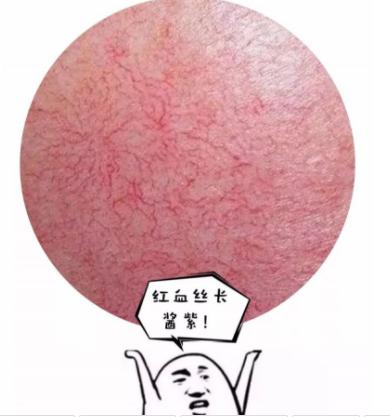 如何去红血丝 北京泰美丽格整形医院激光去红血丝效果如何