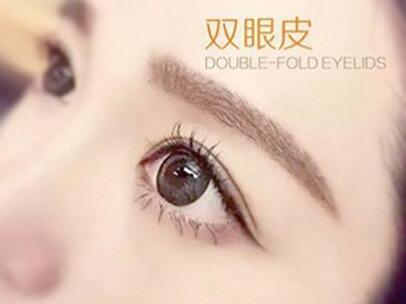 开扇形双眼皮图片 北京八大处整形医院做切开双眼皮优势