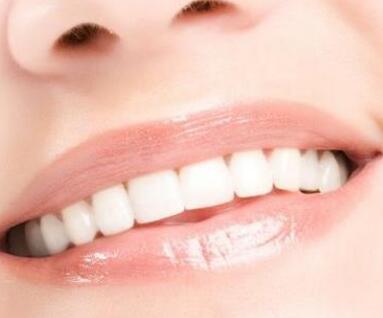 烤瓷牙材料有哪些 杭州美奥口腔整形医院做烤瓷牙多少钱