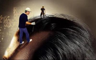 武汉碧莲盛无痕植发种头发要多少钱 植发适应人群