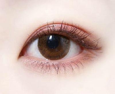 唐山华阳整形割双眼皮多少钱 割双眼皮多久消肿